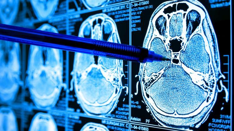 Polacy opracowali atlas mechanizmów rozwoju guzów mózgu